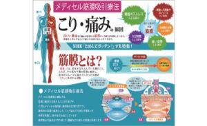 筋膜療法ポスター