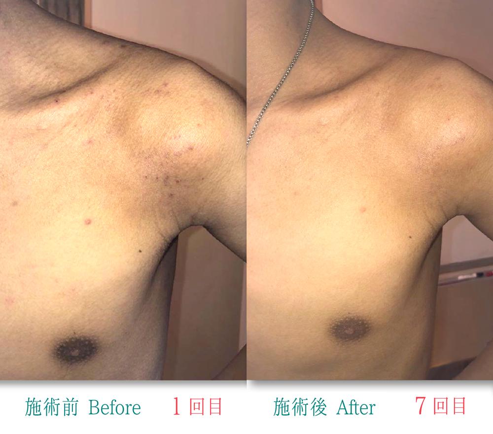 アトピー性皮膚炎肩