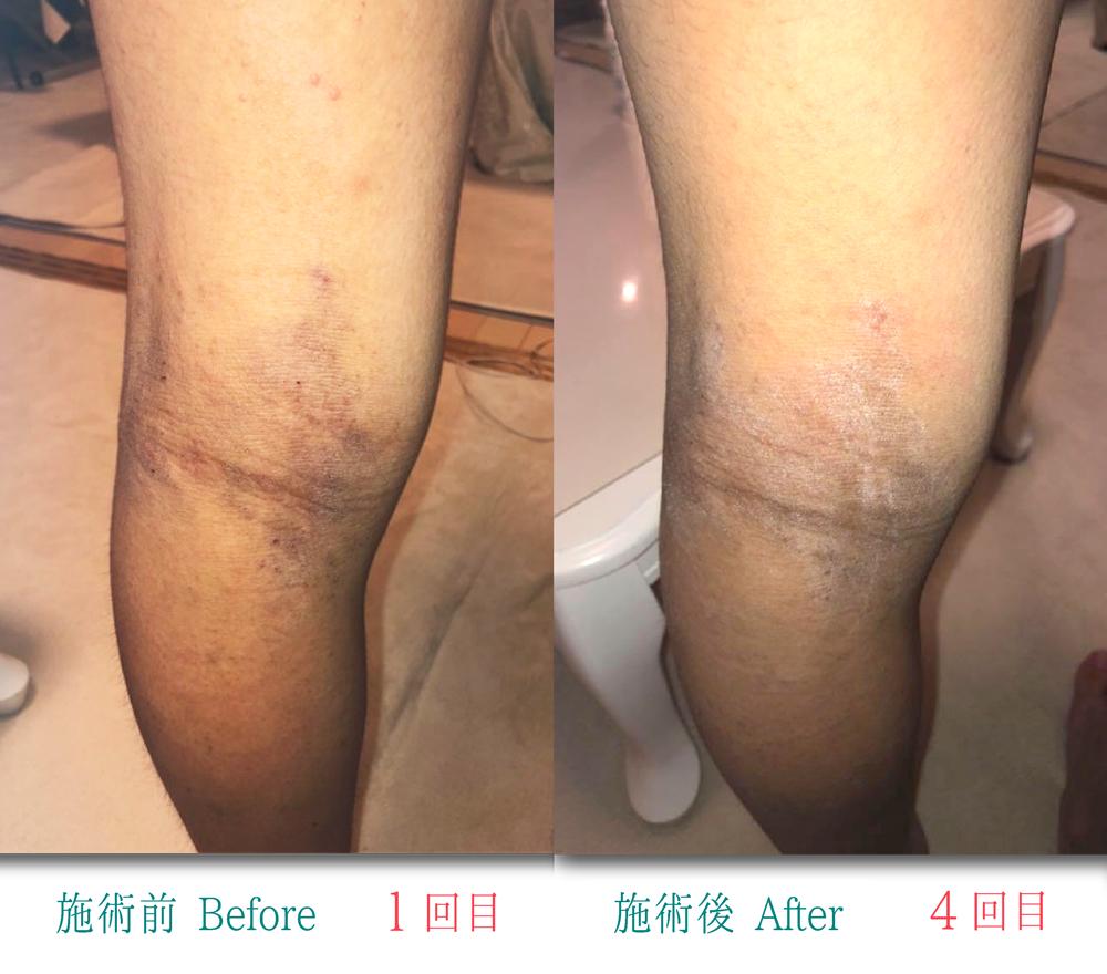 アトピー性皮膚炎膝裏1〜402