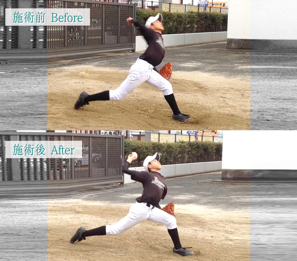 投球動作01前-踏込み足