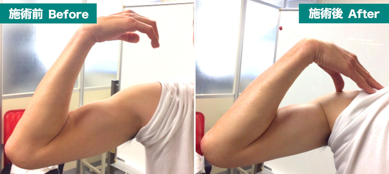肘の手術001-01回