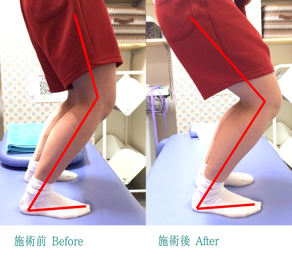 腸脛靭帯炎-01
