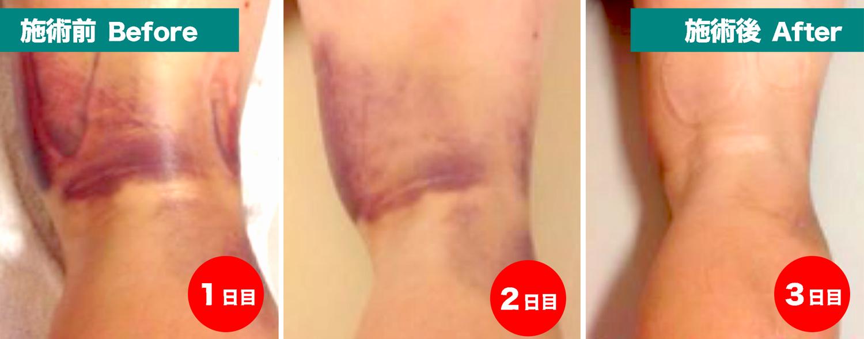 メディセル治療施術 肉離れ001-3日間
